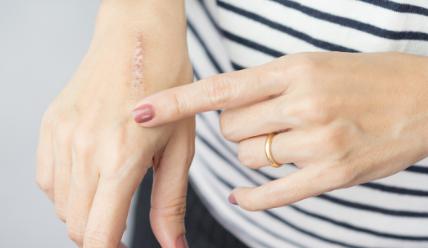 cukrzyca leczenie ran